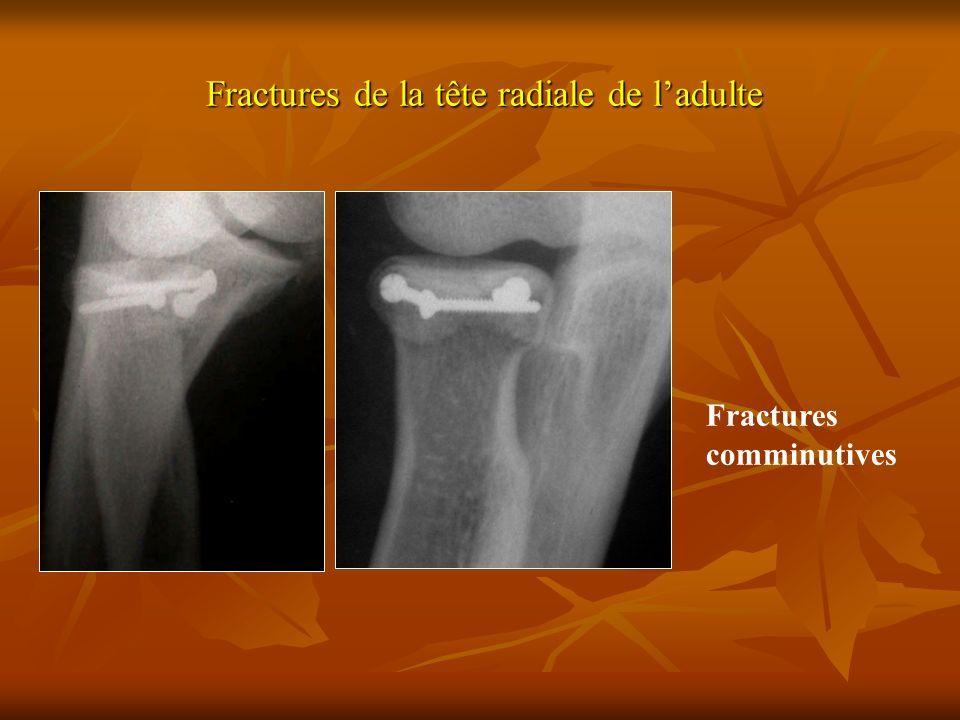 Fractures de la tête radiale de l'adulte