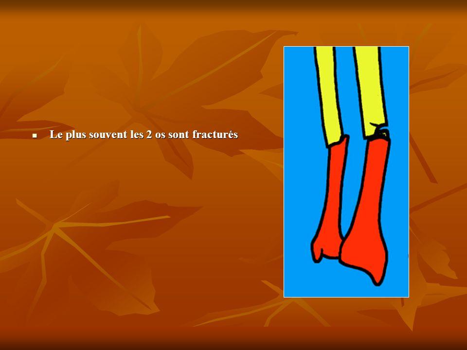 Le plus souvent les 2 os sont fracturés