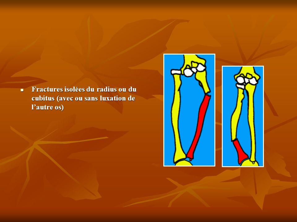 Fractures isolées du radius ou du cubitus (avec ou sans luxation de l'autre os)