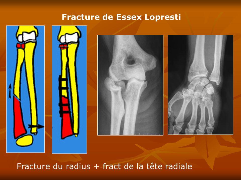Fracture de Essex Lopresti