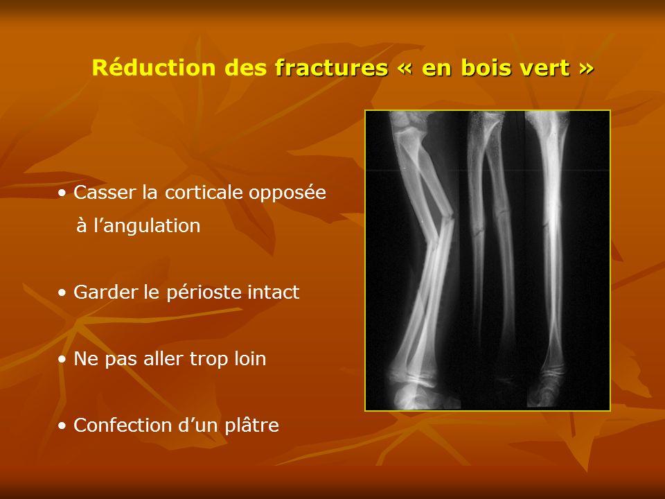 Fracture de la palette humérale  ppt télécharger ~ Fracture Bois Vert Poignet
