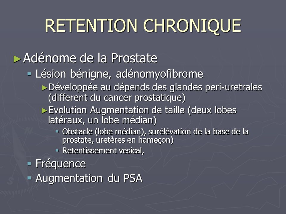 RETENTION CHRONIQUE Adénome de la Prostate