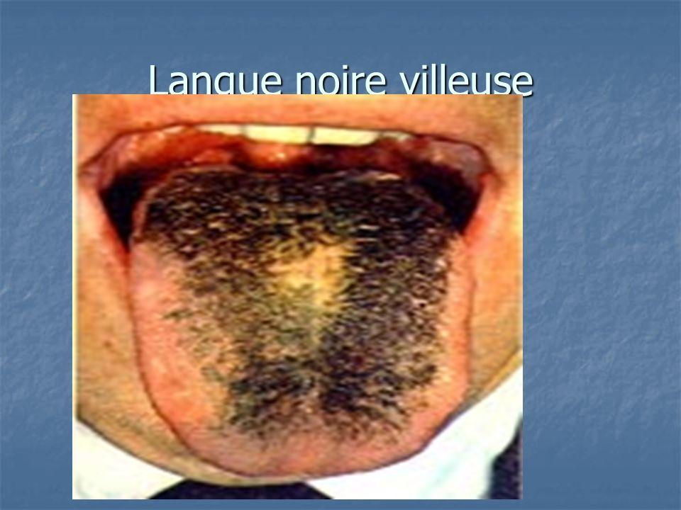 Langue noire villeuse