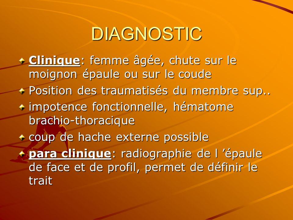 DIAGNOSTIC Clinique: femme âgée, chute sur le moignon épaule ou sur le coude. Position des traumatisés du membre sup..