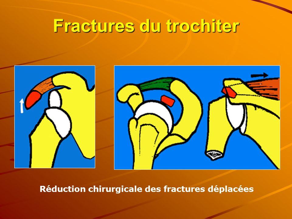 Fractures du trochiter