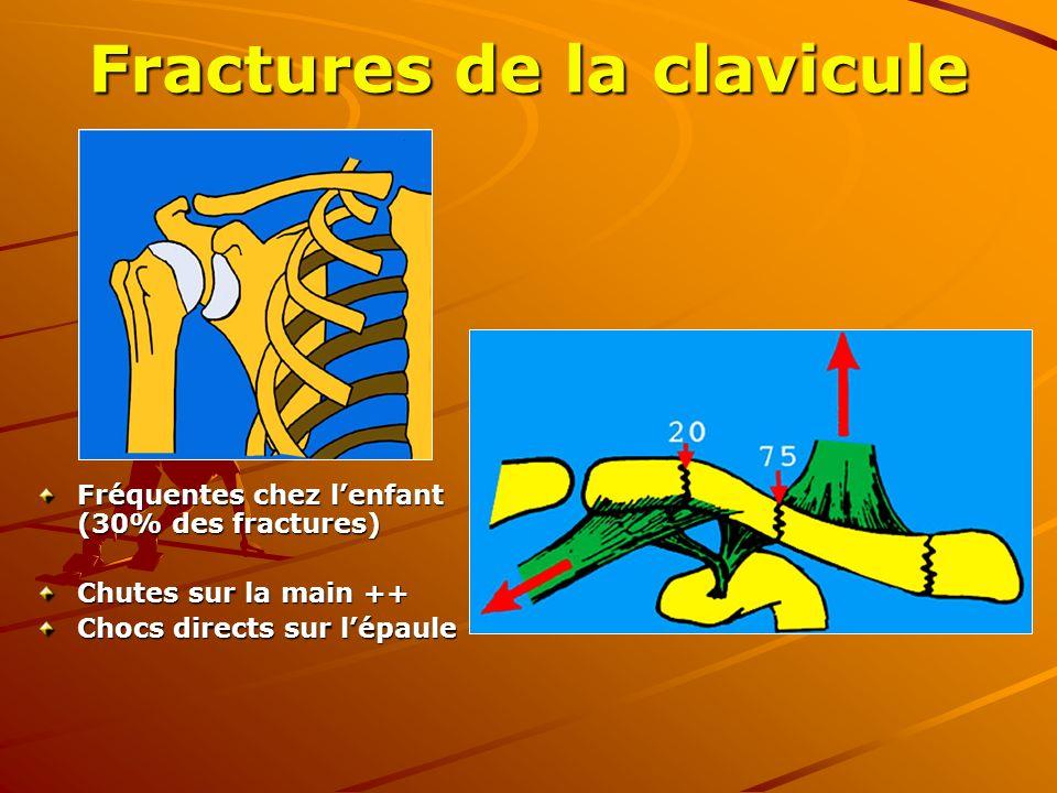 Fractures de la clavicule