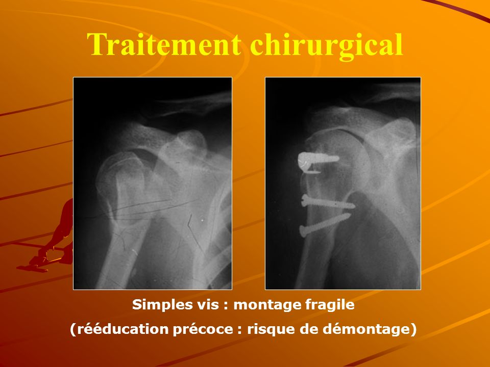 Traitement chirurgical