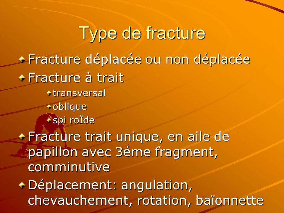 Type de fracture Fracture déplacée ou non déplacée Fracture à trait