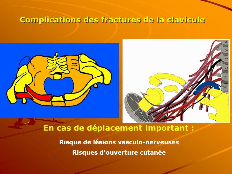 Complications des fractures de la clavicule