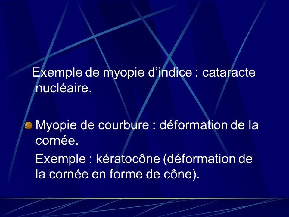 Exemple de myopie d'indice : cataracte nucléaire.
