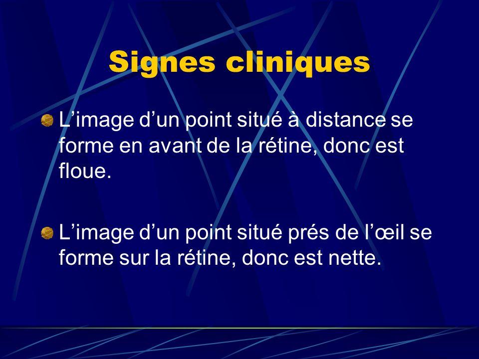 Signes cliniquesL'image d'un point situé à distance se forme en avant de la rétine, donc est floue.