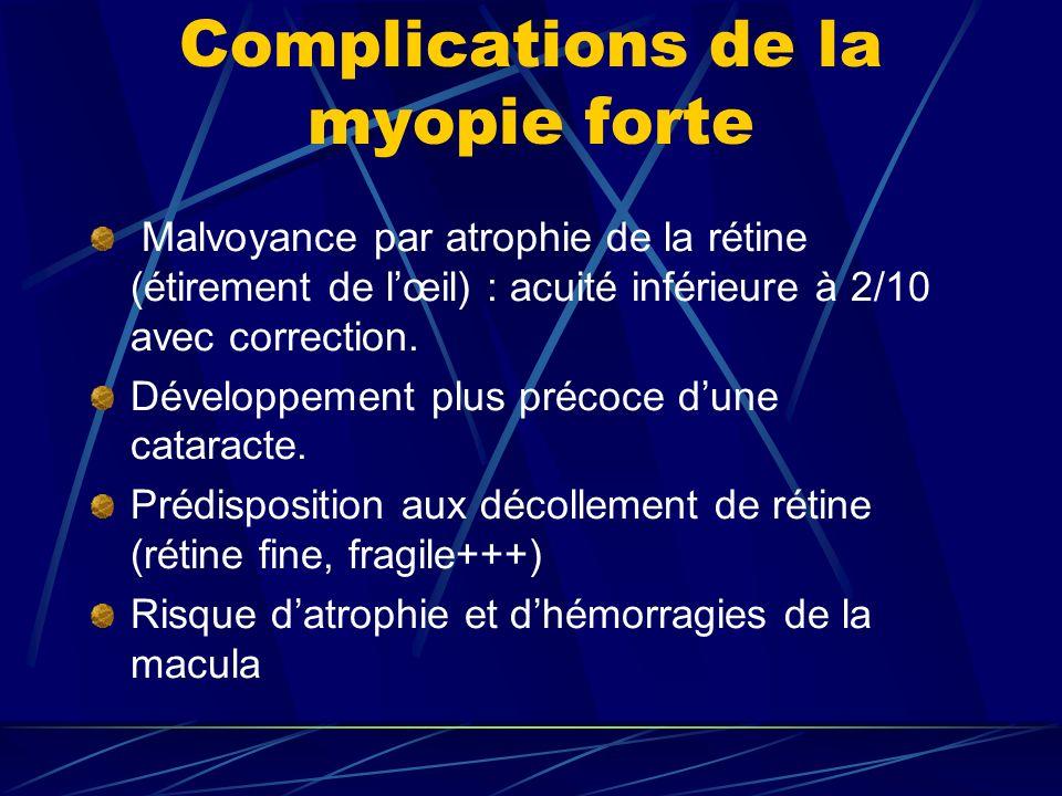 Complications de la myopie forte