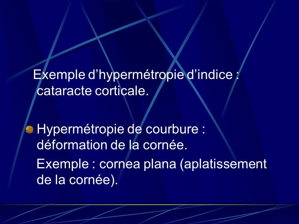 Exemple d'hypermétropie d'indice : cataracte corticale.
