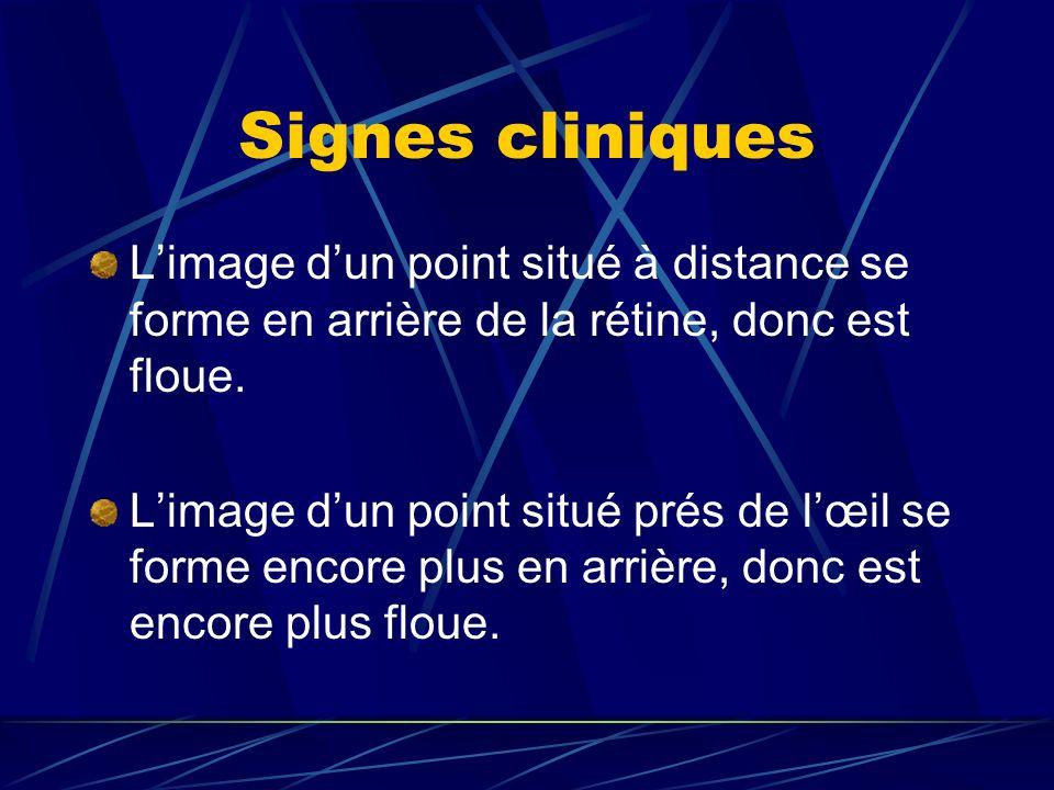 Signes cliniquesL'image d'un point situé à distance se forme en arrière de la rétine, donc est floue.