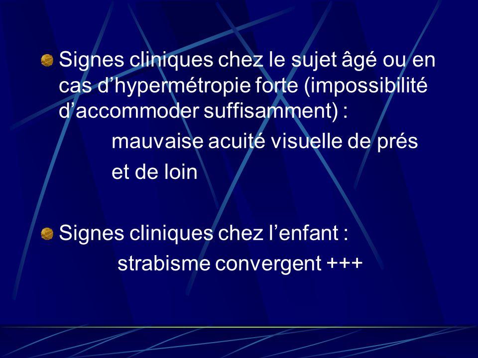 Signes cliniques chez le sujet âgé ou en cas d'hypermétropie forte (impossibilité d'accommoder suffisamment) :