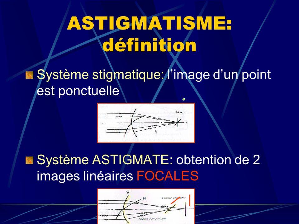 ASTIGMATISME: définition