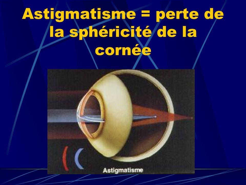 Astigmatisme = perte de la sphéricité de la cornée