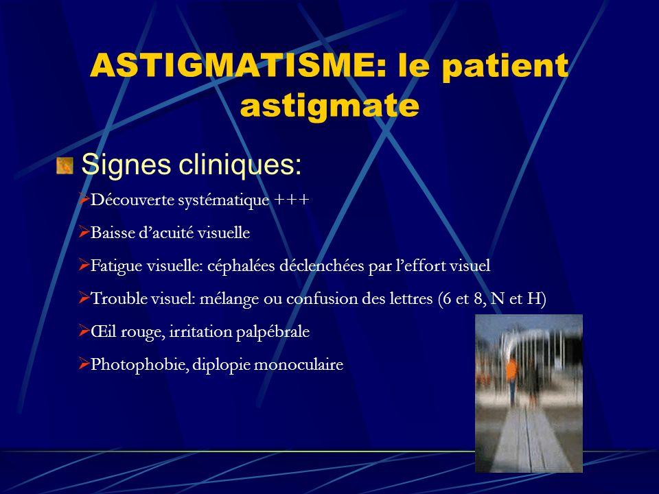 ASTIGMATISME: le patient astigmate