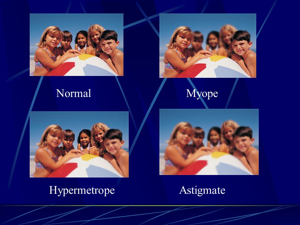 Normal Myope Hypermetrope Astigmate