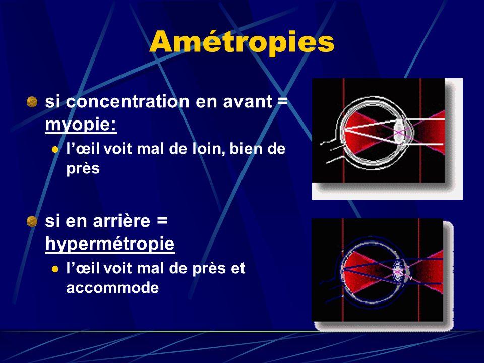 Amétropies si concentration en avant = myopie: