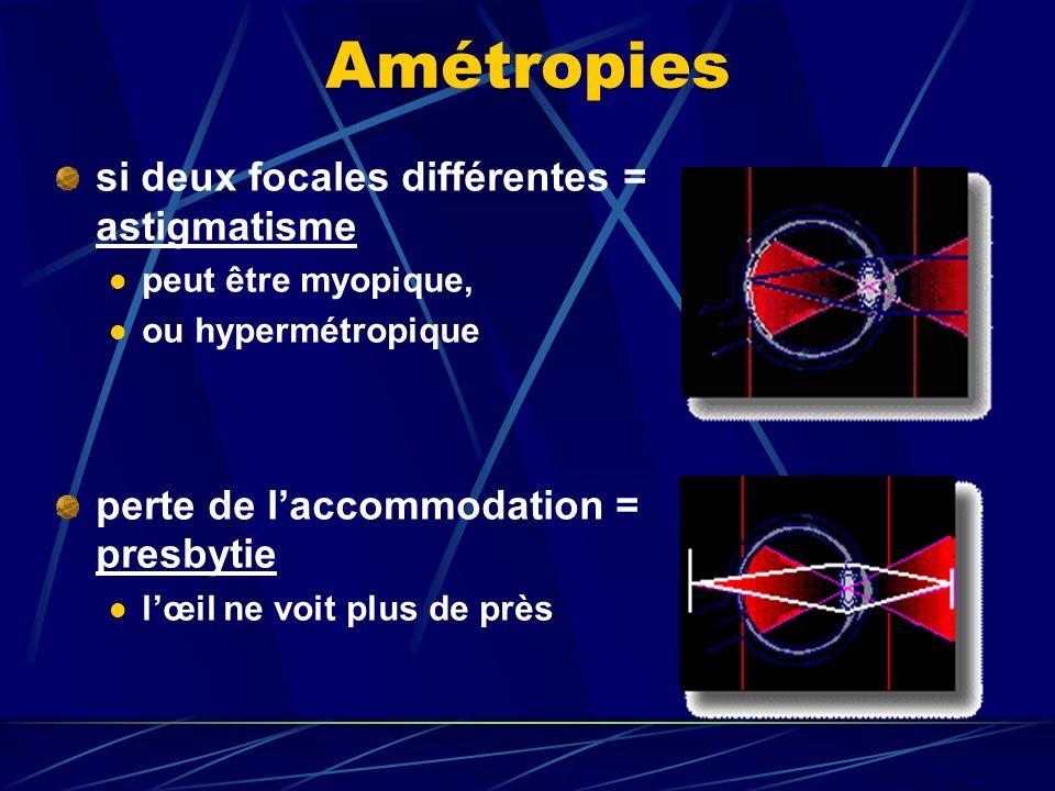 Amétropies si deux focales différentes = astigmatisme
