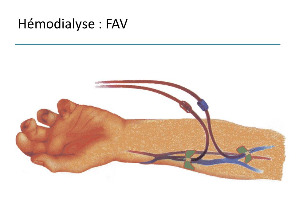 Hémodialyse : FAV
