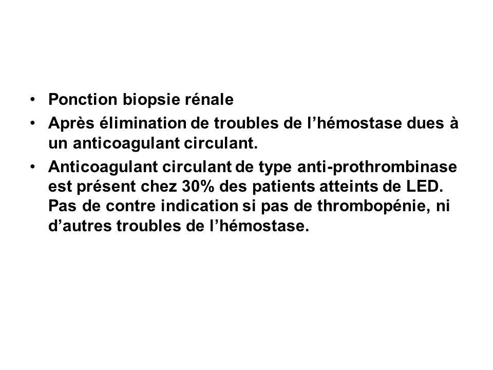 Ponction biopsie rénale