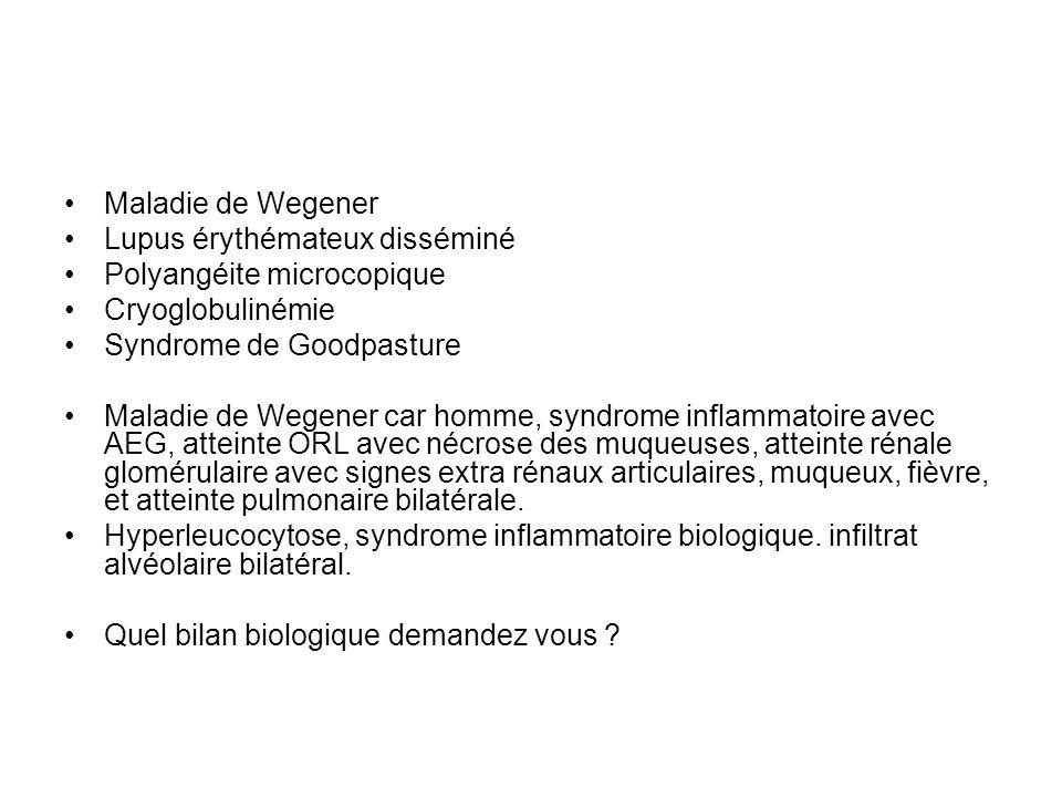 Maladie de Wegener Lupus érythémateux disséminé. Polyangéite microcopique. Cryoglobulinémie. Syndrome de Goodpasture.
