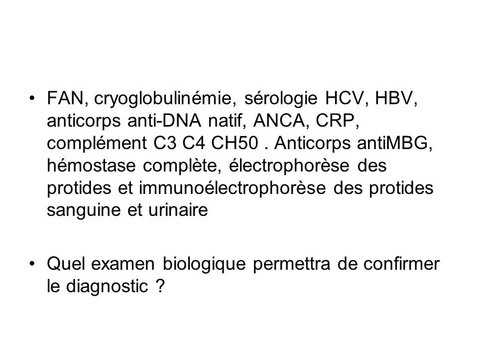 FAN, cryoglobulinémie, sérologie HCV, HBV, anticorps anti-DNA natif, ANCA, CRP, complément C3 C4 CH50 . Anticorps antiMBG, hémostase complète, électrophorèse des protides et immunoélectrophorèse des protides sanguine et urinaire