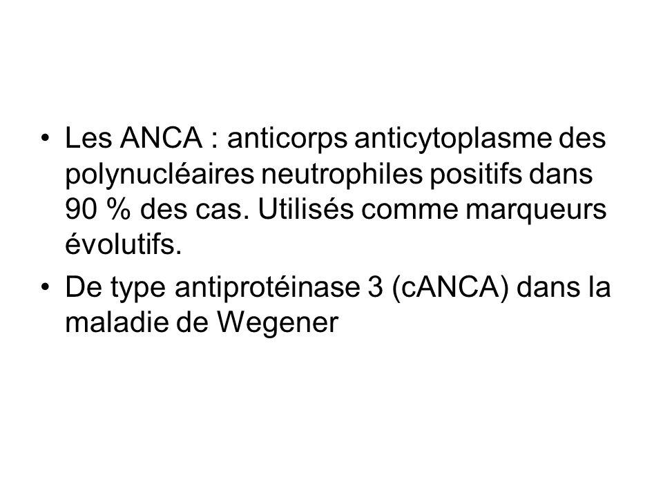 Les ANCA : anticorps anticytoplasme des polynucléaires neutrophiles positifs dans 90 % des cas. Utilisés comme marqueurs évolutifs.