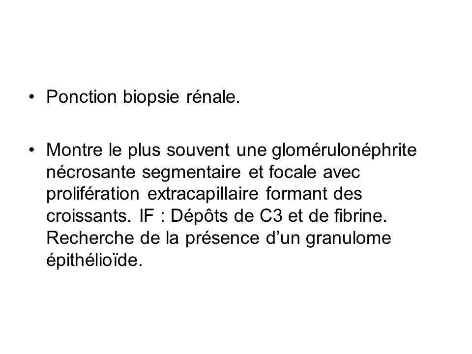 Ponction biopsie rénale.