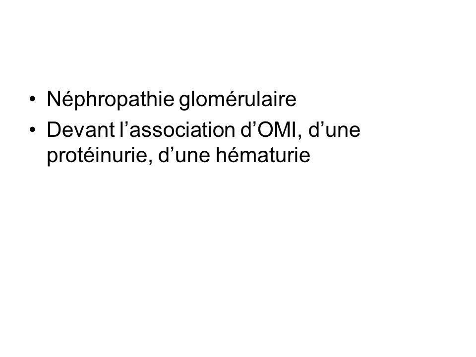 Néphropathie glomérulaire