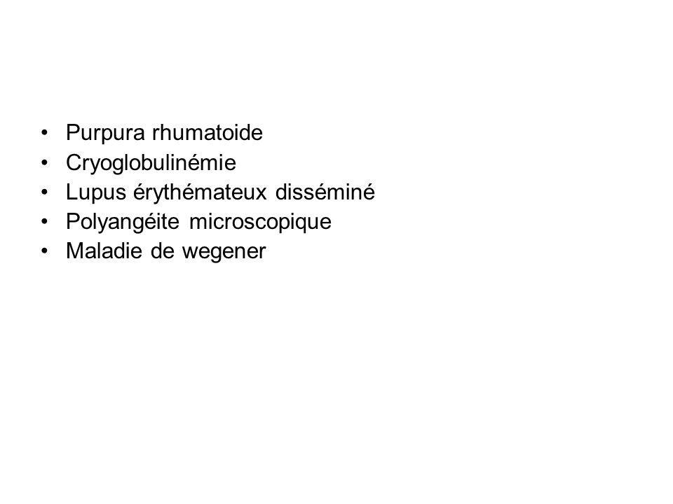 Purpura rhumatoide Cryoglobulinémie. Lupus érythémateux disséminé.