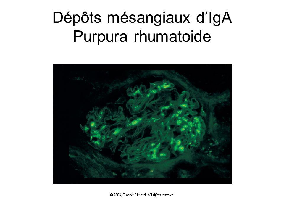 Dépôts mésangiaux d'IgA Purpura rhumatoide