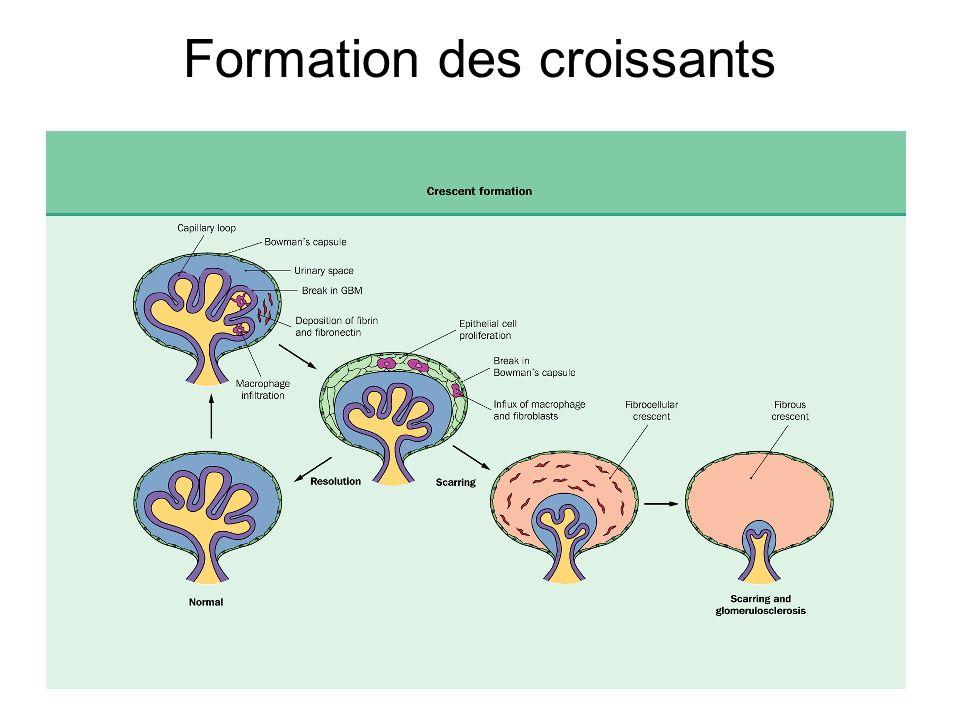 Formation des croissants extracapillaires