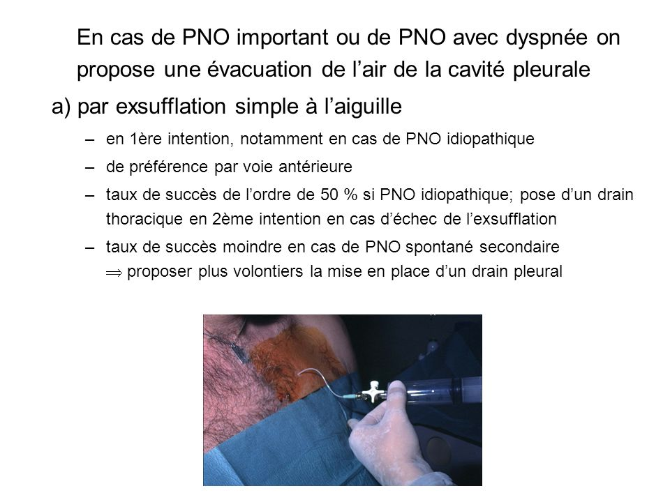 a) par exsufflation simple à l'aiguille