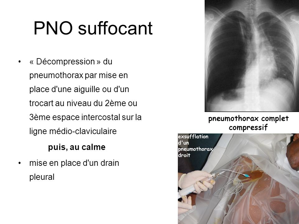 PNO suffocant