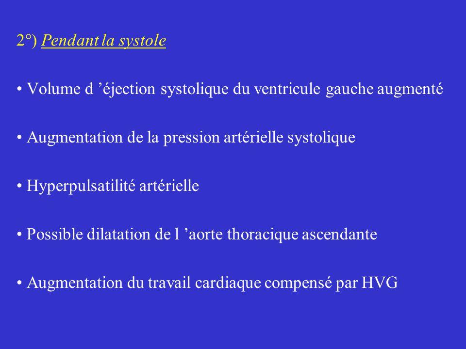 2°) Pendant la systole Volume d 'éjection systolique du ventricule gauche augmenté. Augmentation de la pression artérielle systolique.