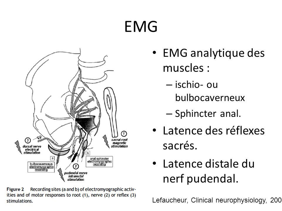 EMG EMG analytique des muscles : Latence des réflexes sacrés.