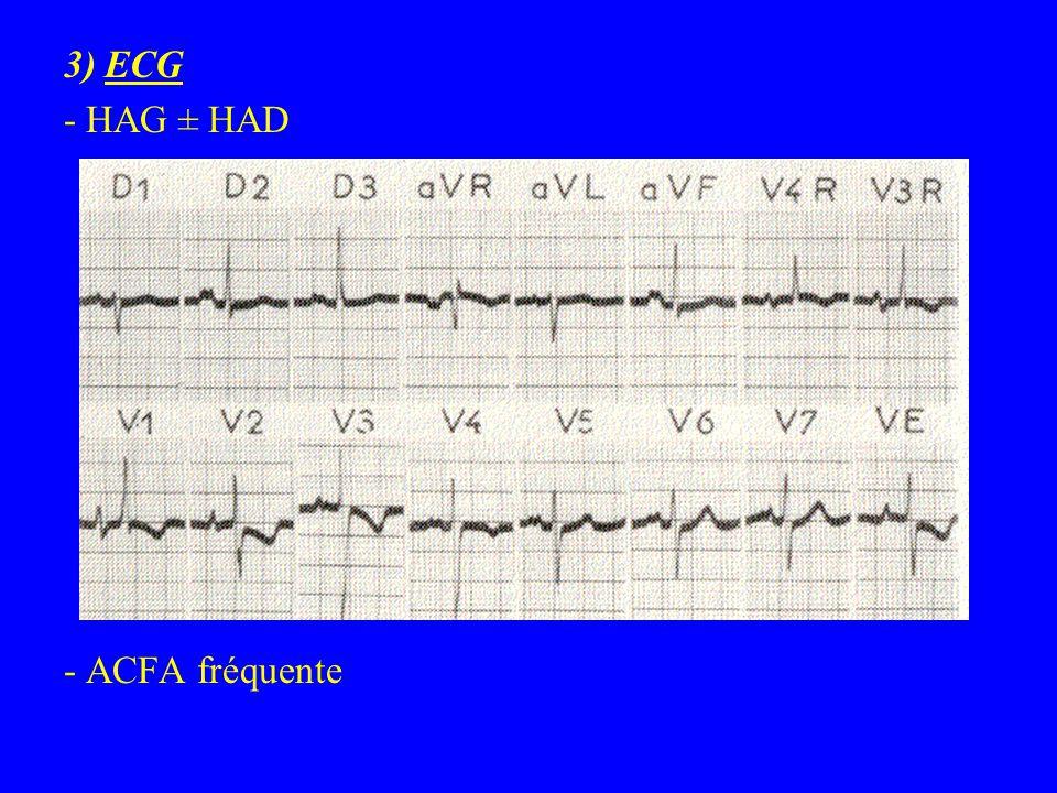 3) ECG - HAG ± HAD - ACFA fréquente