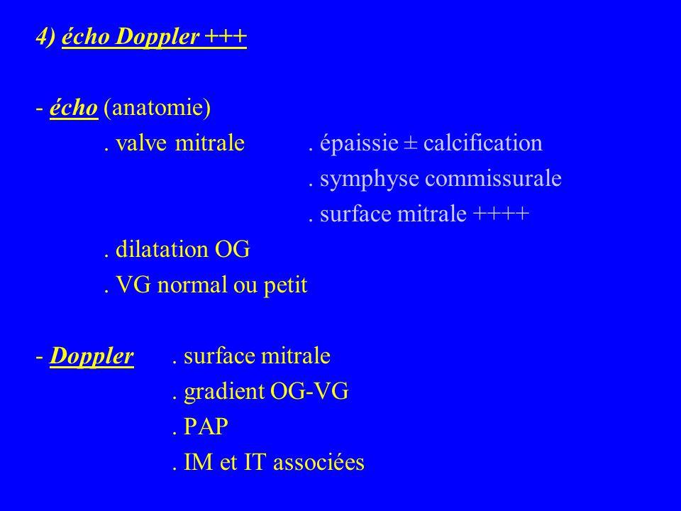 4) écho Doppler +++ - écho (anatomie) . valve mitrale . épaissie ± calcification. . symphyse commissurale.