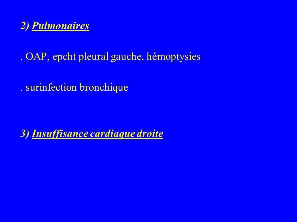2) Pulmonaires . OAP, epcht pleural gauche, hémoptysies.