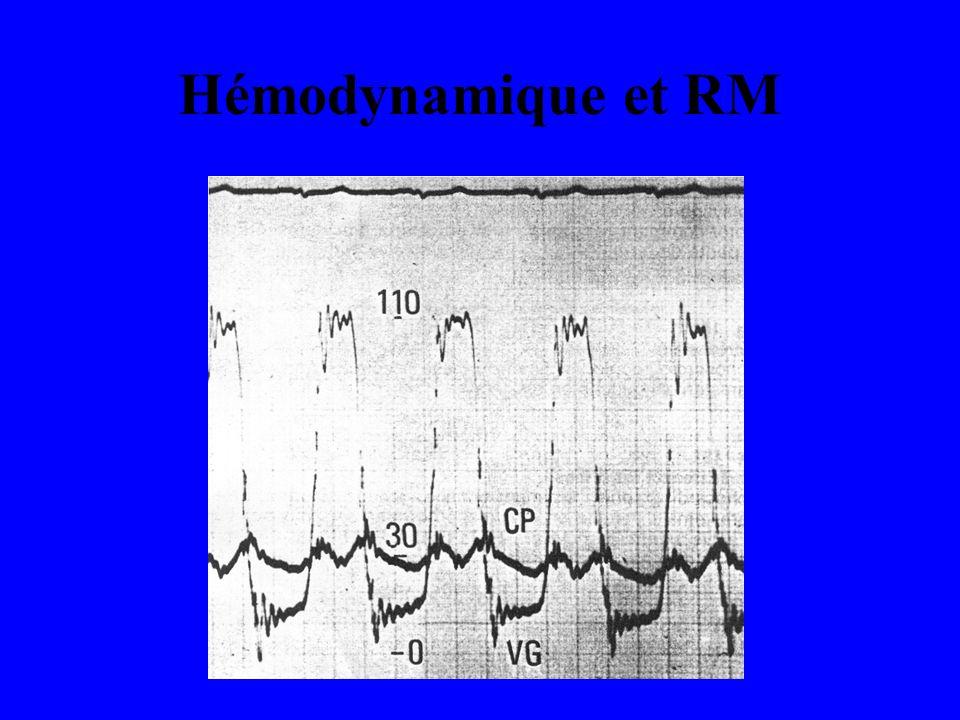 Hémodynamique et RM