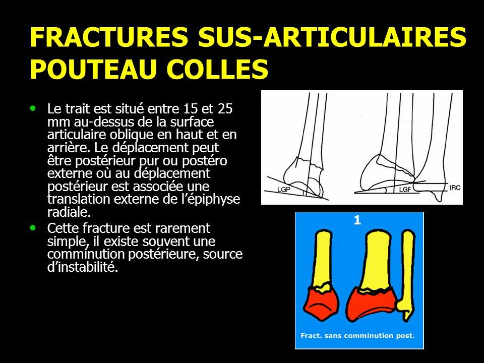 FRACTURES SUS-ARTICULAIRES POUTEAU COLLES