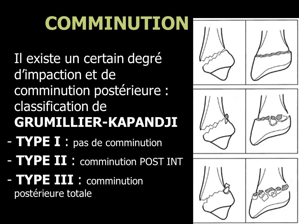COMMINUTION Il existe un certain degré d'impaction et de comminution postérieure : classification de GRUMILLIER-KAPANDJI.