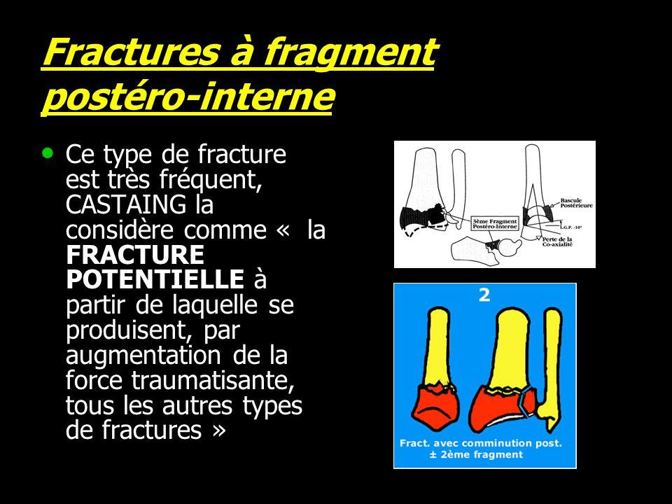Fractures à fragment postéro-interne