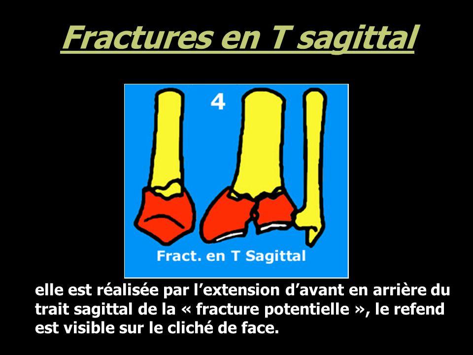 Fractures en T sagittal