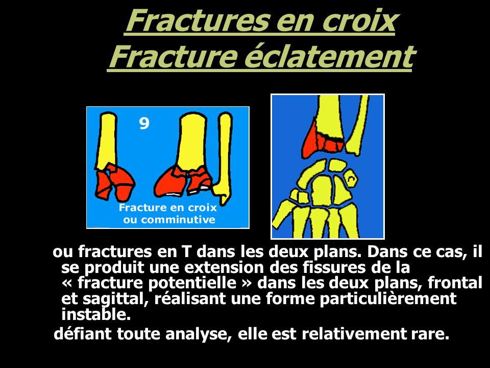 Fractures en croix Fracture éclatement