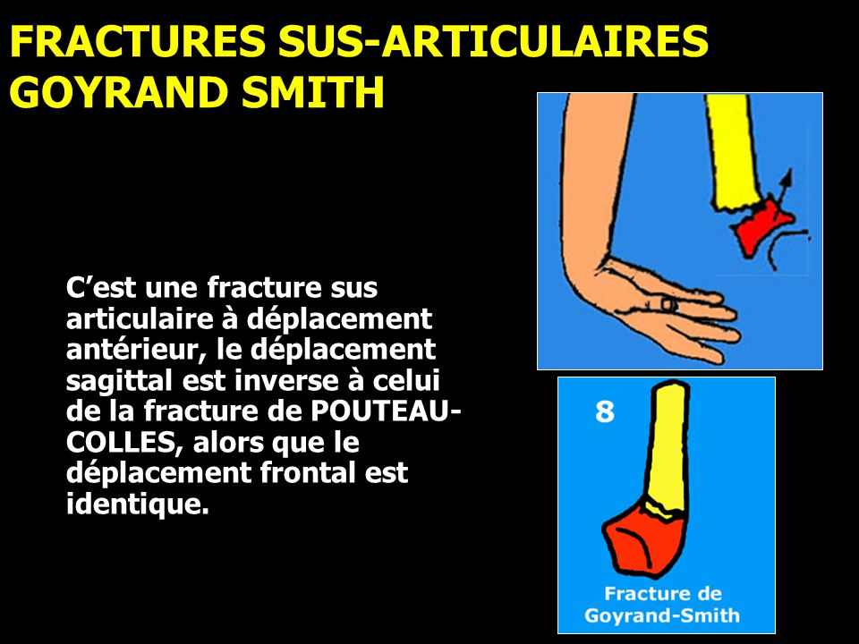 FRACTURES SUS-ARTICULAIRES GOYRAND SMITH