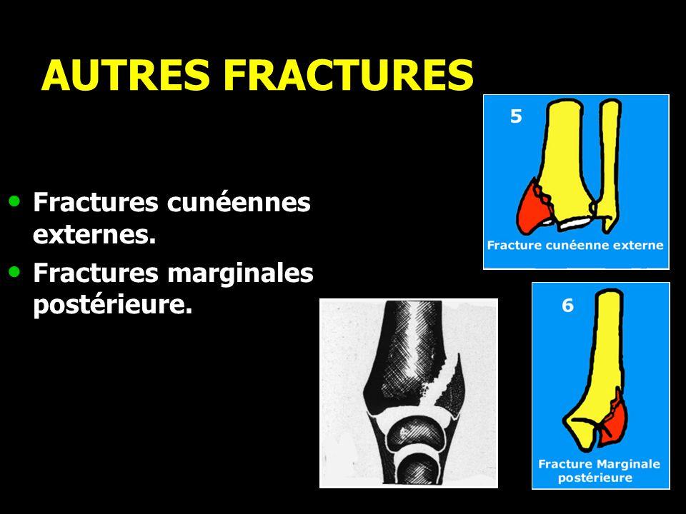 AUTRES FRACTURES Fractures cunéennes externes.